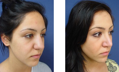 dr.laguna facial fat graft before after
