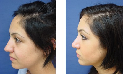 Before & After Gallery - Rhinoplasty 1