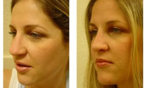 Rhinoplasty Plastic Surgeon Orange County