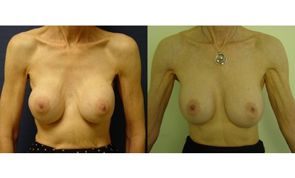 dr. laguna breast augmentation revision before after
