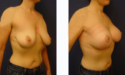 dr. laguna breast lift implants before after