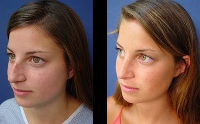 dr. laguna facial fat grafting before after