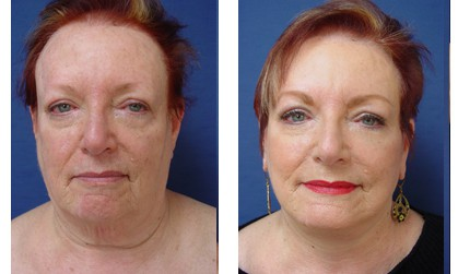 Facelift Plastic Surgeon Orange County
