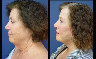 Face lift Plastic Surgeon Orange County