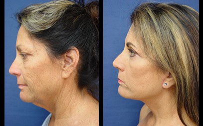dr. laguna face neck lift before after