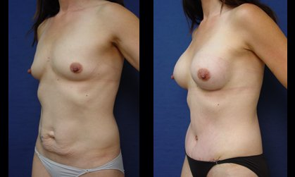 Mommy Makeover Plastic Surgeon Orange County