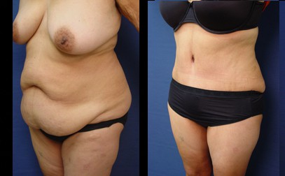 dr. laguna tummy tuck before after