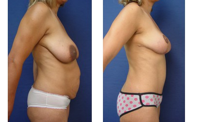Tummy Tuck Plastic Surgeon Orange County