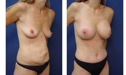 Tummy Tuck Procedure Newport Beach