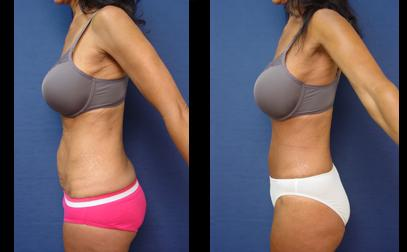Tummy Tuck in Orange County
