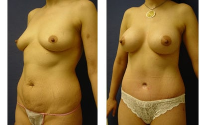 Mini Tummy Tuck Newport Beach