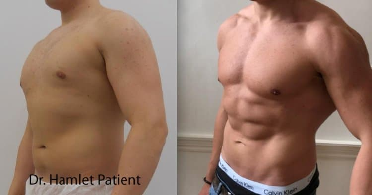 high-definition-liposuction-male-before-after