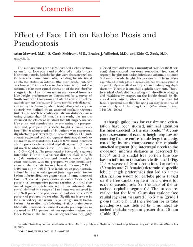 Effect of face lift on earlobe ptosis and pseudoptosis