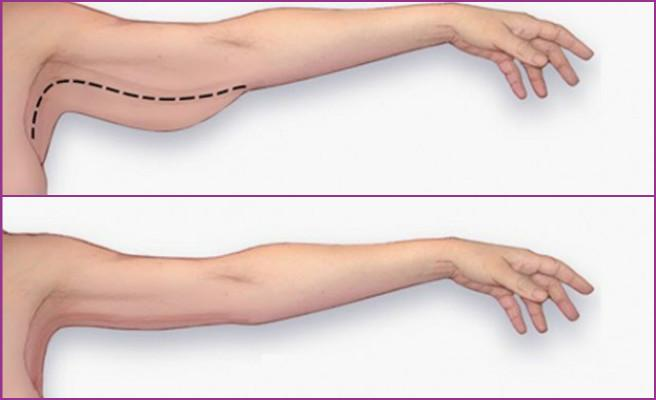 arm-lift-brachioplasty
