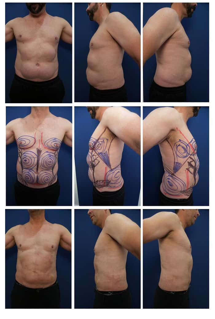 coolsculpting-paradoxical-adipose-hyperplasia-treatment