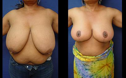 breast lift vs breast reduction