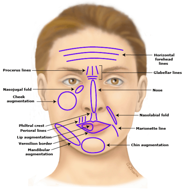 facial-filler-areas