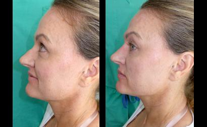 dr. laguna facial filler before after