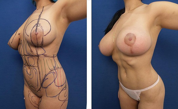 drlaguna-plastic-surgery-vaser-liposuction-female-before-after-abdomen