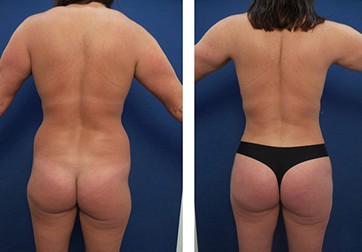 Most Expensive Brazilian Buttocks Lift 2