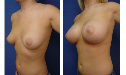 Dr. Laguna Breast Augmentation Before After