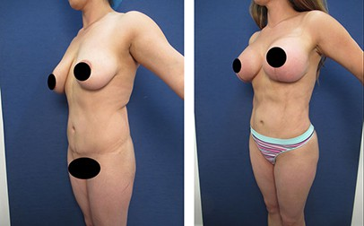 hd liposuction before after mowlavi p1