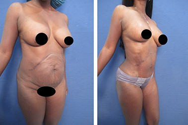 hd liposuction before after mowlavi p12