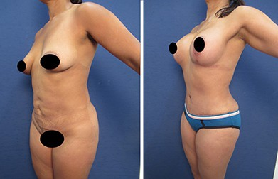 mowlavi dr.laguna hd body contouring before after