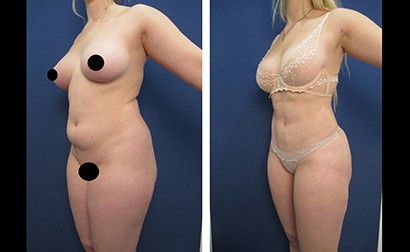 hd liposuction before after mowlavi p28