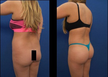Liposuction - Brazilian Buttock Lift - Dr. Laguna