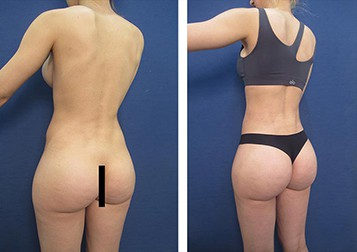 dr.laguna hd vaser liposuction before after