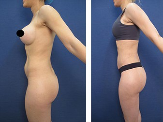 dr.laguna hd body contouring before after