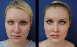 rhinoplasty revision to correct nasal contour - front view