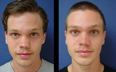 dr.laguna revision rhinoplasty before after
