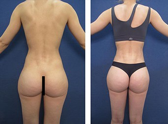maximizing buttocks augmentation