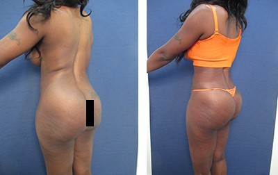 drlaguna liposuction revision before after