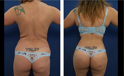 Free Liposuction Consultation: Brazilian Butt Lift (BBL) 8