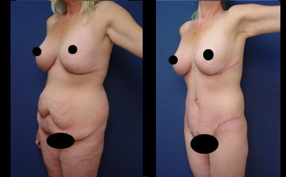 dr. laguna post bariatric before after