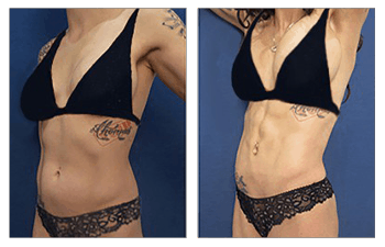 Female abdominal etching procedure – frontal left view