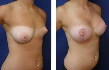 breast augmentation procedure - right lateral view