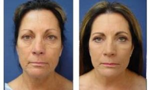 facelift scars status post face and neck lift - front view