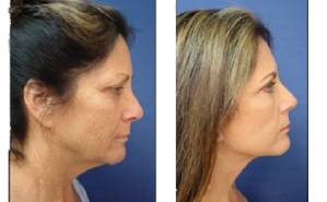 facelift scars status post face and neck lift - right view