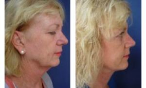 facelift pictures only 2 weeks following 2 layered face and neck lift - right view