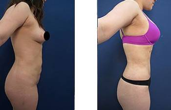 hd-liposuction-before-after-mowlavi-p11-01-400x246