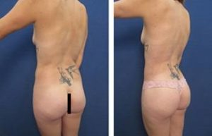 high definition liposuction - back left view