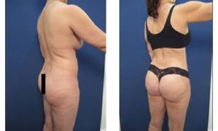hd-liposuction-before-after-mowlavi-p23-02-2-400x246