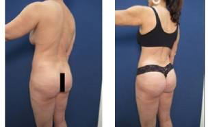 hd-liposuction-before-after-mowlavi-p23-03-2-400x246