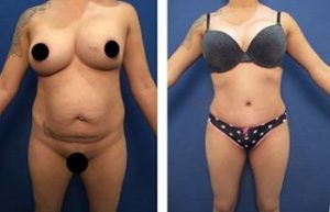 BBL with vaser hd liposuction procedure - front view
