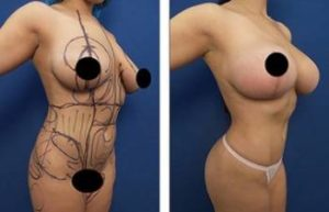 hd liposuction and bbl procedures - front right view