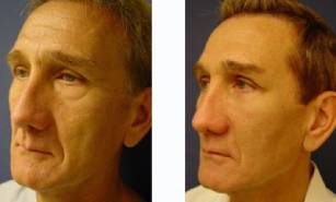 lower-blepharoplasty-patient-2002-front-left-1-400x241